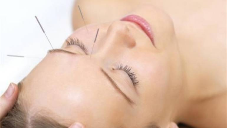 Facial acupuncture – the natural alternative to botox (guest post)