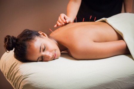Acupuncture – 9 facts and why you need it